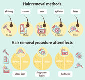 Big hair removal infographic Royalty Free Stock Photo