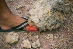 A big rock fall over the man`s foot. stock photo