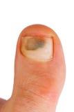 Big toe. Closeup of caucasian woman big toe with bruise over toenail Royalty Free Stock Photos