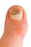 Big toe. Closeup of caucasian woman big toe with bruise over toenail Stock Photography
