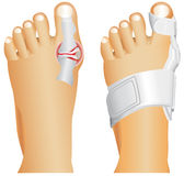 Big toe injury. Support for foot or . Hallufix Hallux Valgus Splint. Bunion, Hallux valgus, popularly known as Bunion Royalty Free Stock Images