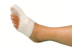 Big toe injury. Splint support for big toe injury stock photography