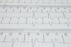 Bigeminism för Ventricular extrasystole antecknade hjärt- arrhythmia på en elektrokardiogram fotografering för bildbyråer