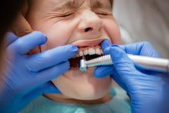 Bij de tandarts stock fotografie