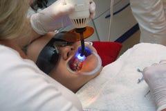 Bij orthodontist royalty-vrije stock afbeelding