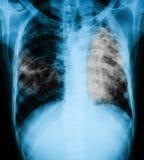 Bild för bröstkorgröntgenstråle av en patient med lung- tuberkulos Royaltyfri Fotografi
