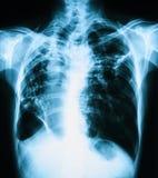 Bild för bröstkorgröntgenstråle, upprätt sikt för PA Arkivbilder