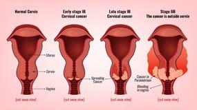 Bild för cervikal cancer royaltyfri illustrationer