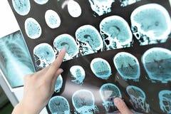 Bildläsning för CT för doktorssiktsefterbehandling. Royaltyfri Foto