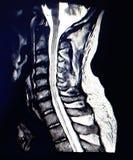 Bildläsning för magnetisk resonans av den cervikala ryggen fotografering för bildbyråer
