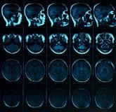 Bildläsning för magnetisk resonans av hjärnan med skallen MRI-huvudbildläsning på blå färg för mörk bakgrund royaltyfria bilder