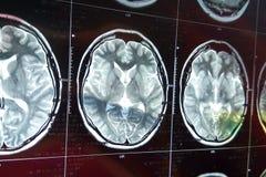 Bildläsning för magnetisk resonans av hjärnan med skallen MRI-huvudbildläsning på mörk bakgrund arkivfoto