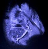 Bildl?sning f?r reva f?r MRI-kn?menisk arkivbilder