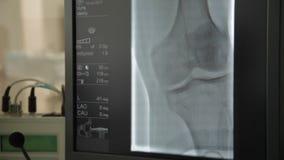Bildskärm av angiographic fungeringsrum lager videofilmer