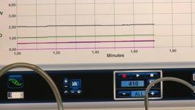 Bildskärmskärm med resultat för testa för laboratorium Graf av att ta prov resultat stock video