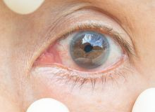 Bindhinneinflammation i ögonkvinnorna arkivfoton