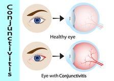 bindhinneinflammation rosa färgöga med inflammation Yttre sikt och vertikalt avsnitt av de mänskliga ögonen och ögonlocken stock illustrationer