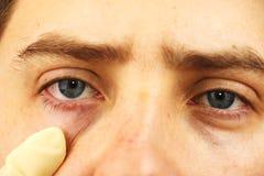 Bindhinneinflammation trötta ögon, röda ögon, ögonsjukdom royaltyfri fotografi