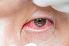 Bindvliesontsteking en ontsteking in de ogen stock foto's