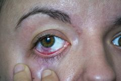 Bindvliesontsteking of roze oog royalty-vrije stock afbeeldingen