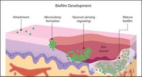 Biofilm, der in der Hautwunde sich bildet lizenzfreie abbildung