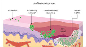 Biofilm forming in skin wound Royalty Free Stock Photos
