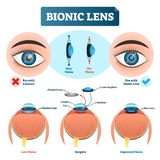 Bionic lens vector illustration. Eye lens structure labeled scheme. Bionic lens vector illustration. Labeled medical scheme with cataract. Isolated diagram with vector illustration