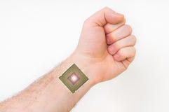 Bionische microchip binnen menselijk lichaam - cyberneticaconcept stock foto