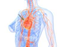 biopsie serca zastrzyk Fotografia Stock