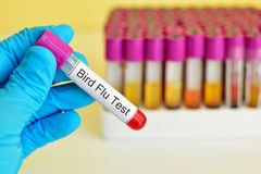 Bird Flu test Royalty Free Stock Images