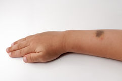 Birth mark on the right hand Royalty Free Stock Image