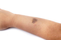 Birth mark on the right hand. This birth mark is useful when anything happen to the man or child Royalty Free Stock Images