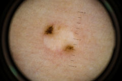 Birthmark on the body. Dermotolog birthmark on the body in the microscope Stock Photography