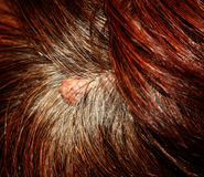 The birthmark on his head in her hair.  Stock Image