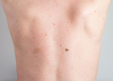 Birthmark Royalty Free Stock Photos