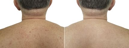 Birthmark pimples on the back men bad skin before and after treatment clinic. Birthmark pimples on the back man bad skin before and after treatment stock photography