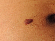 Birthmark on the skin of middle aged man. Close-up Stock Image