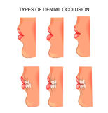Bite dental. dentistry. Vector illustration of a dental occlusion. dentistry Stock Images