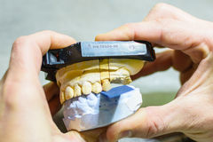 Biting test with prosthesis molds. In a dental laboratory Stock Image