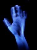 blå hand Arkivfoton