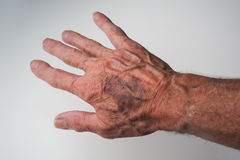 Blåmärken och blodfläckar under huden som uppstår på äldre folk Arkivbilder