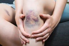 Blåmärkeskada på knä för ung kvinna arkivfoton