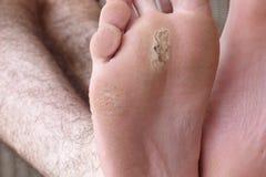Blåsa på fötter arkivfoto