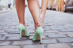 Blåsor kvinna på höga häl har smärtsamma skor arkivfoton
