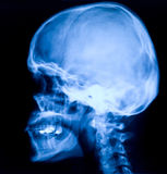 Head röntgenstråle Arkivbilder