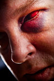 Black eye. Close-up of man with genuine bloodshot black eye - focus on eye Royalty Free Stock Photography