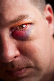 Black eye. Close-up of man with genuine black eye - focus on eye Stock Photos