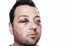 Black eye injury accident violence isolated Royalty Free Stock Image