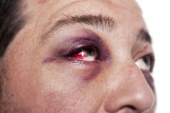 Black eye injury accident violence isolated. Eye injury, male with black eye isolated on white. man after accident or fight with bruise royalty free stock image