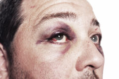 Black eye injury accident violence isolated. Eye injury, male with black eye isolated on white. man after accident or fight with bruise stock images